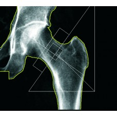Bone Densitometry: Principles and Procedures Part I: Modules 1-4 (Mail)