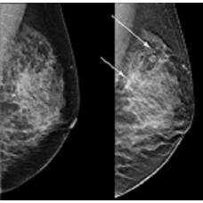 Digital Breast Tomosynthesis (Live Event)