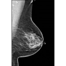 Digital Mammography and Clinical Applications (Live Simulcast)